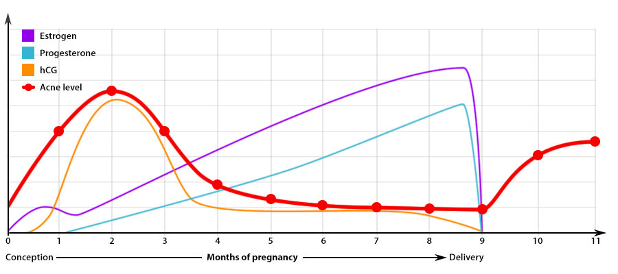 About Teen Pregnancy